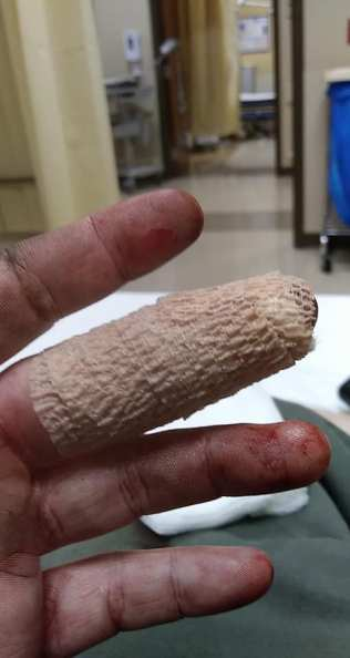 Be glad it's not the actual wound. Image depicts hand covered in dirt and blood with peach gauze wrapping middle finger.